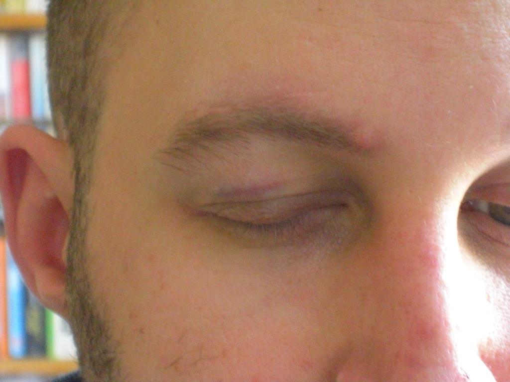 john's black eye